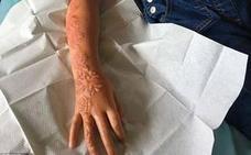 Un tatuaje de henna le destroza el brazo a una niña de 7 años
