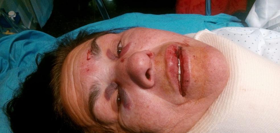 Herida grave al ser arrollada en un paso de cebra en la avenida del Mar Cantábrico, en Viesques