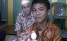 El extraño caso de un niño que asegura poner huevos