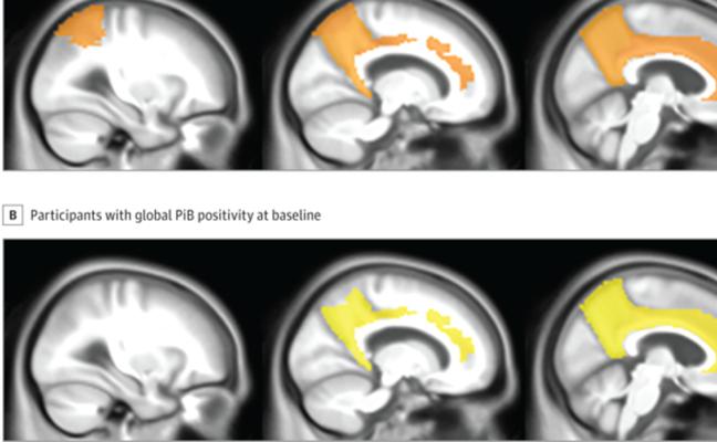 Se confirma que la falta de sueño aumenta la probabilidad de padecer alzhéimer