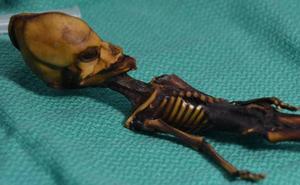 El esquelto de Atacama no era un alien, sino una niña con una efermedad ósea