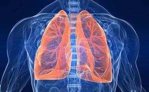 La supervivencia al cáncer de pulmón aumenta con los tratamientos combinados