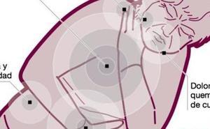 Los síntomas que alertan de un infarto en mujeres