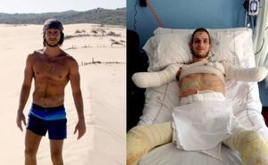 El drama de David, un joven que ha perdido los brazos y las piernas