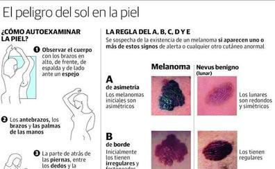 Las señales para identificar un melanoma en tu piel