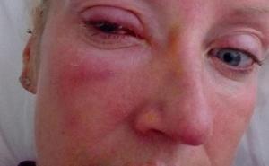 Se queda ciega por un parásito que se le pegó a la lentilla y le «devoró» el ojo