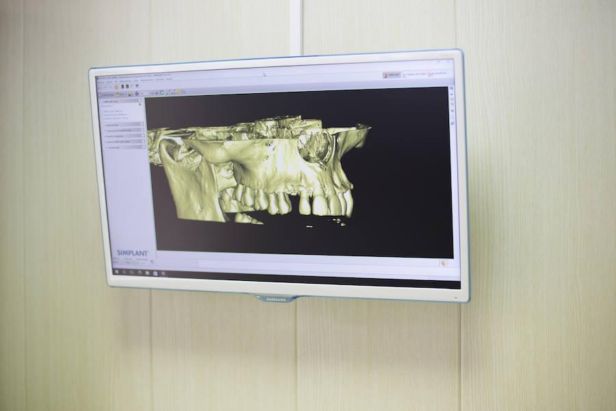 Cómo cuidar los implantes dentales para que duren más tiempo