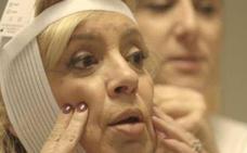 La operación de papada de Carmen Borrego