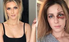 La paliza de un campeón de Motocross a su novia por una foto en Instagram