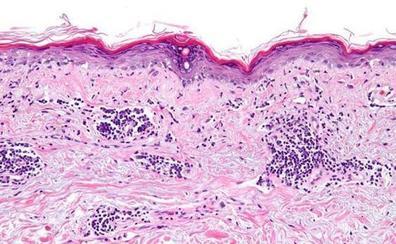 ¿Sabes qué es el Lupus?