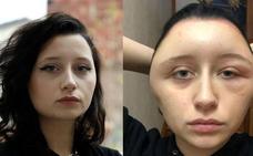 Una joven acaba con la cara deformada y al borde de la muerte por teñirse el pelo