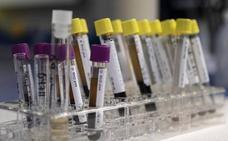 Un simple análisis de sangre permitirá detectar el alzhéimer 16 años antes de los primeros síntomas