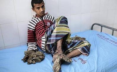 El 'hombre árbol' vuelve al hospital sin esperanzas de curación