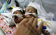 Fallecen los dos bebés siameses que no pudieron ser evacuados en Yemen