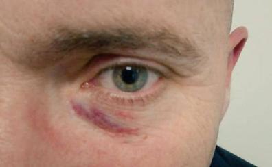 El joven que agredió a Rajoy ataca al coordinador local de Vox en Pontevedra