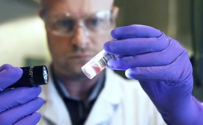 Investigadores de la Universidad de Oviedo avanzan en la detección precoz del cáncer de mama