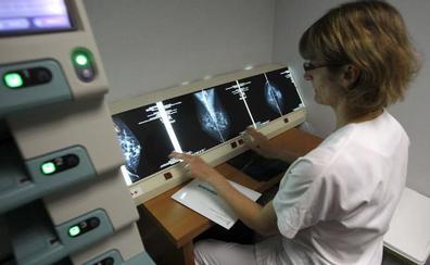 Asturias actualiza el programa de cáncer de mama para reducir su mortalidad