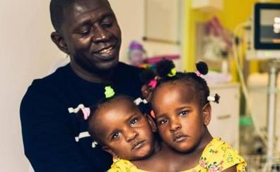El difícil dilema de un padre de siamesas: separarlas para salvar a una hija o dejar morir a las dos