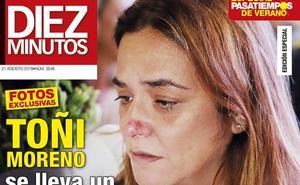 Toñi Moreno se lleva un susto en su embarazo