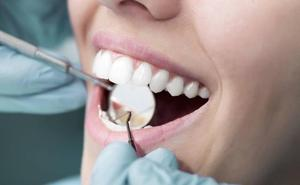 A juicio por hacerse pasar por dentista y causar daños a un paciente al que colocó implantes en Avilés