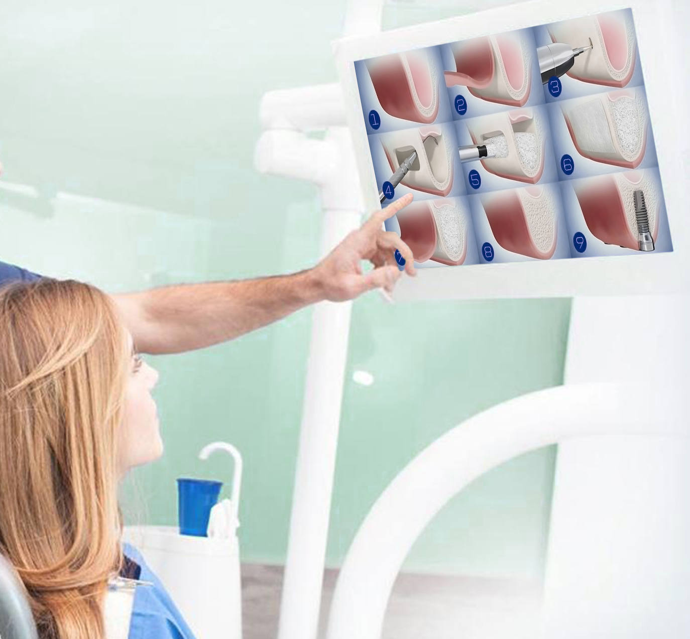 Innovaciones en regeneración ósea: cada vez más personas reciben implantes dentales con éxito