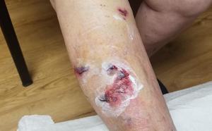 Un cartero rural, herido en una pierna al ser atacado por un perro en Veranes