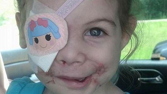 Una niña de tres años es expulsada de un restaurante porque su cara daba miedo